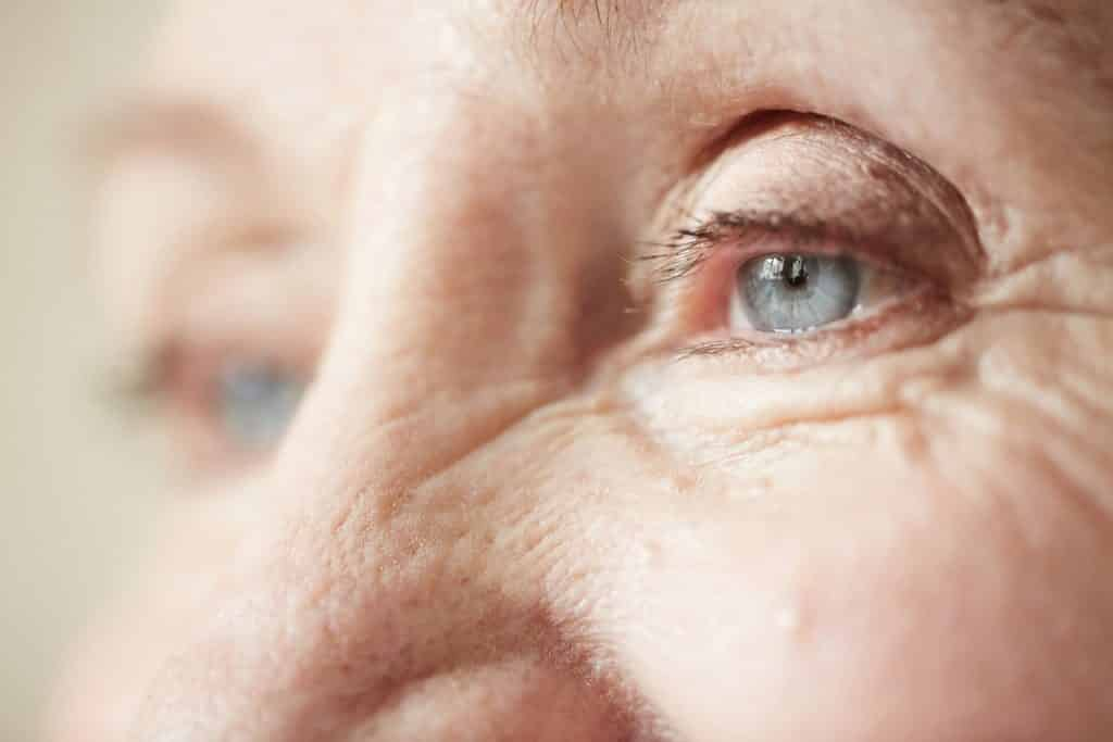 Everything You Need to Know About Cataracts